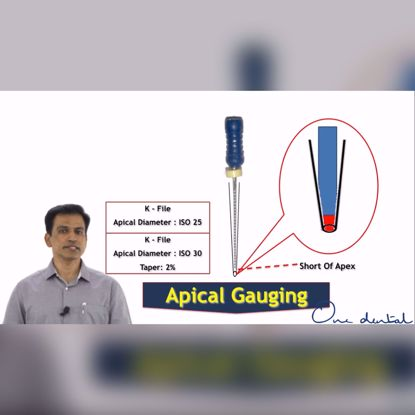 Picture of Choosing the correct gutta percha point: Apical gauging