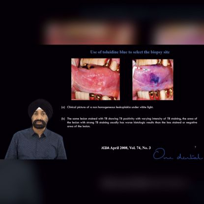 Picture of Biopsy Step 1: How to select the area for biopsy