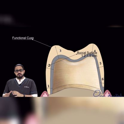 Picture of Average reduction for PFM prosthesis for posterior teeth