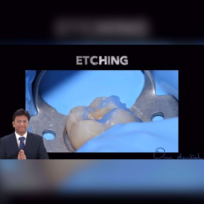 Picture of The correct way to acid etch a tooth for composite restorations