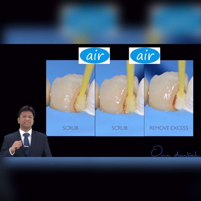Picture of Correct bonding protocol for composite restorations