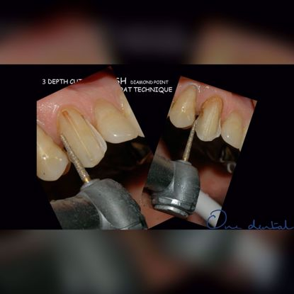 Picture of Simplified techniques of tooth preparation