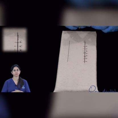Picture of External vertical mattress suture demonstration