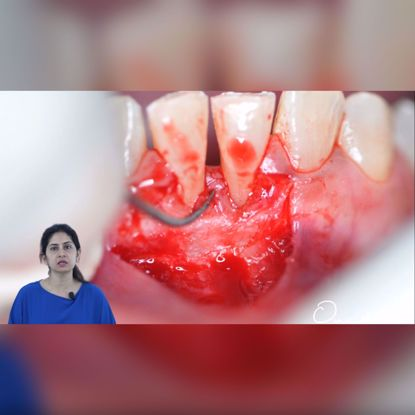 Picture of Free gingival autograft procedure