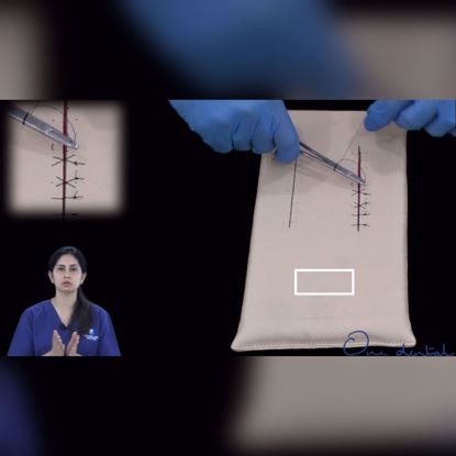 Picture of Horizontal mattress suture demonstration