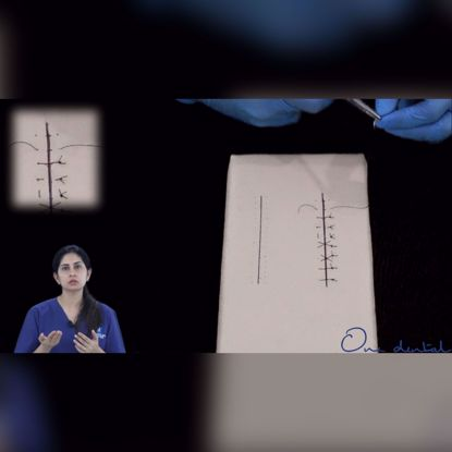 Picture of Internal mattress suture demonstration