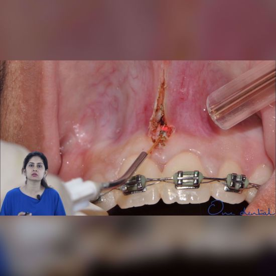 Picture of Laser frenectomy- Step by step