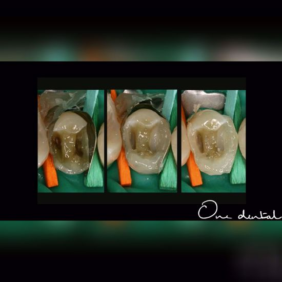 Picture of Direct posterior resin restorations
