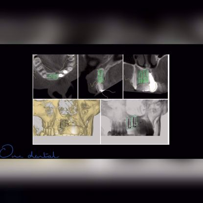 Picture of Guided implant surgery
