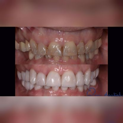 Picture of Delicate dentistry with porcelain veneers