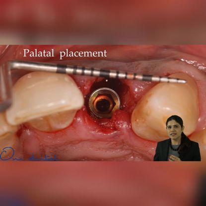 Picture of Recent advances in implant aesthetics