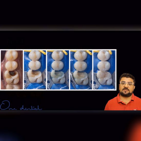 Picture of Importance of dental photography in dentistry
