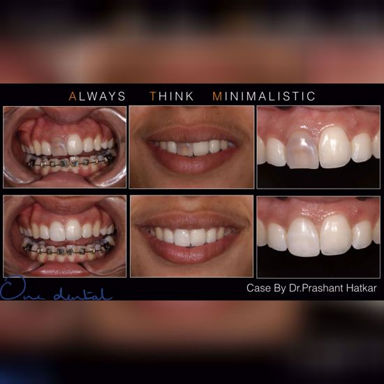 Picture of 7 secrets to success in aesthetic dentistry