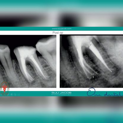 Picture of Anatomic variations in routine endodontics