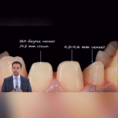 Picture of Biomimetic dentistry