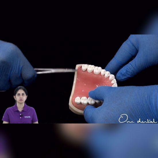 Picture of Anchor suture demonstration