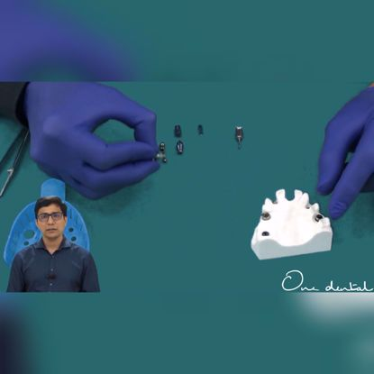 Picture of Components of oral implants