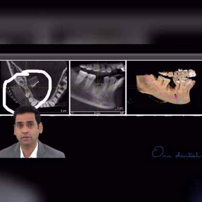 Picture of CBCT assisted dentistry