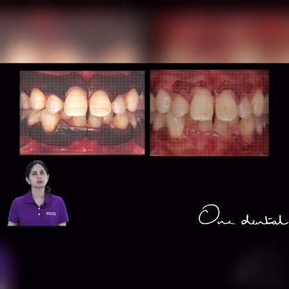 Picture of Gingival depigmentation using an Erbium YAG laser