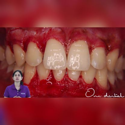Picture of Gingival depigmentation by surgical stripping