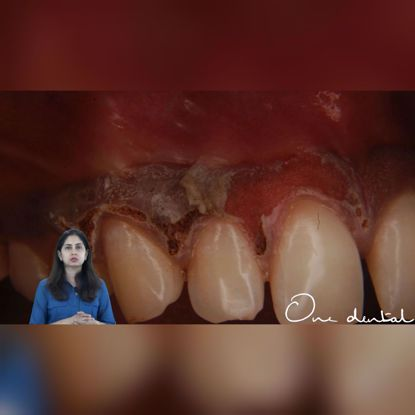 Picture of Gingival depigmentation using  CO2 laser
