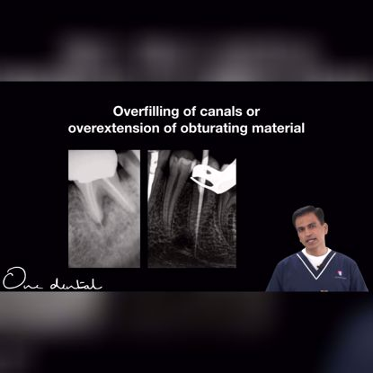 Picture of Procedural errors during obturation and their management