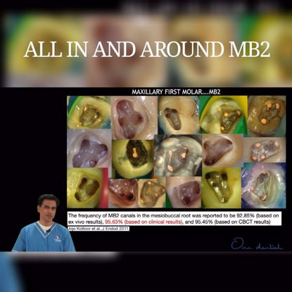 Picture of All in and around MB2